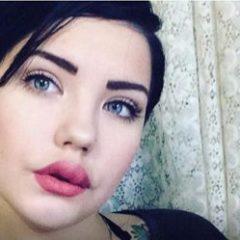 В Магнитогорске девушке с дефектом внешности отказали в работе и пригрозили судом
